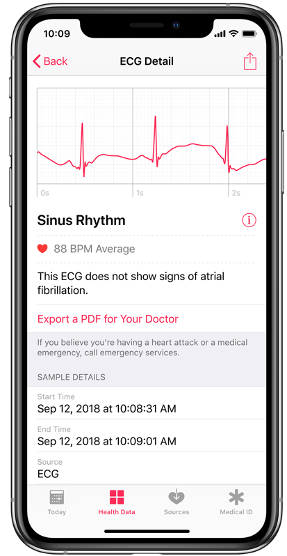 iPhone showing Sinus Rhythm ECG